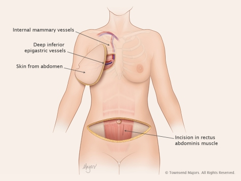 abdominal04_DIEPflap_chest1