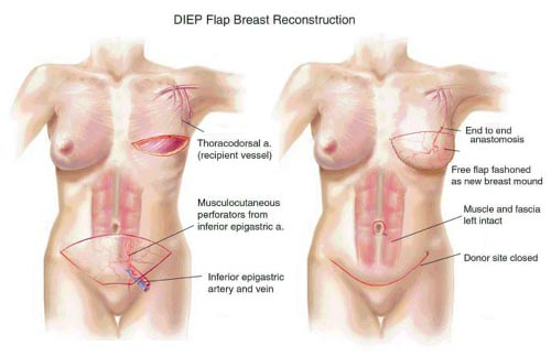 Why DIEP Flap Procedure?